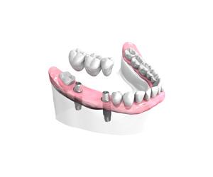 Dentiste Levallois Perret