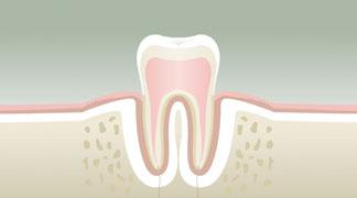 Parodontologie stade 1 - Dentiste à Levallois Perret