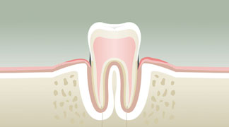 Parodontologie stade 2 - Dentiste à Levallois Perret