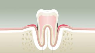 Parodontologie stade 3 - Dentiste à Levallois Perret