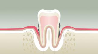 Parodontologie stade 4 - Dentiste à Levallois Perret