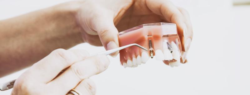 Implant dentaire Dentiste Levallois Perret